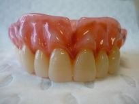 intermediate dentures